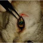 Проникающее ранение глаза